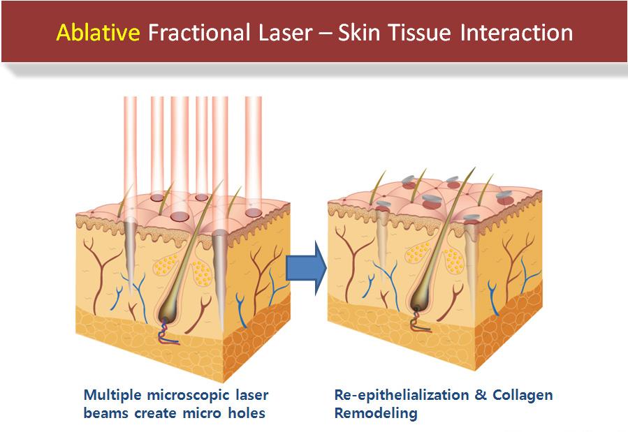 Fractional-Laser-crop