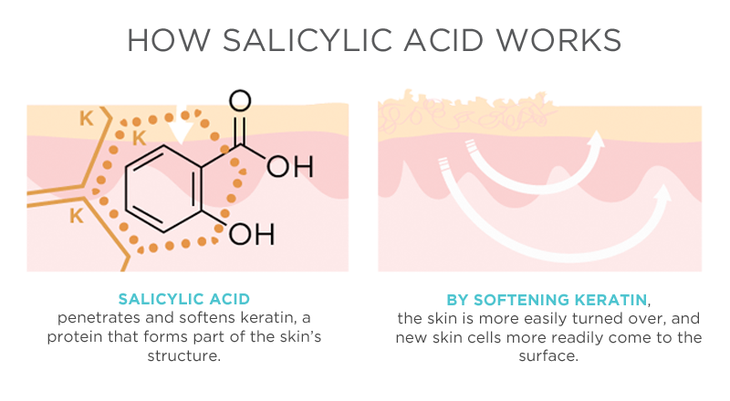 How-Salicylic-Acid-Works1