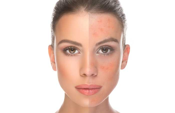 How is Rosacea Treated