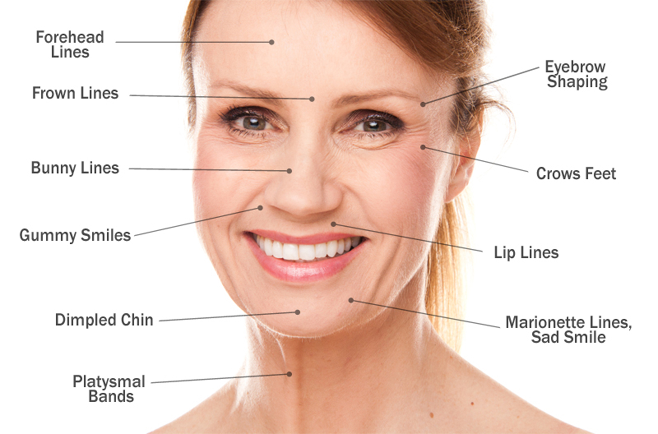 Hylaform:Hylaform Plus Dermal Fillers