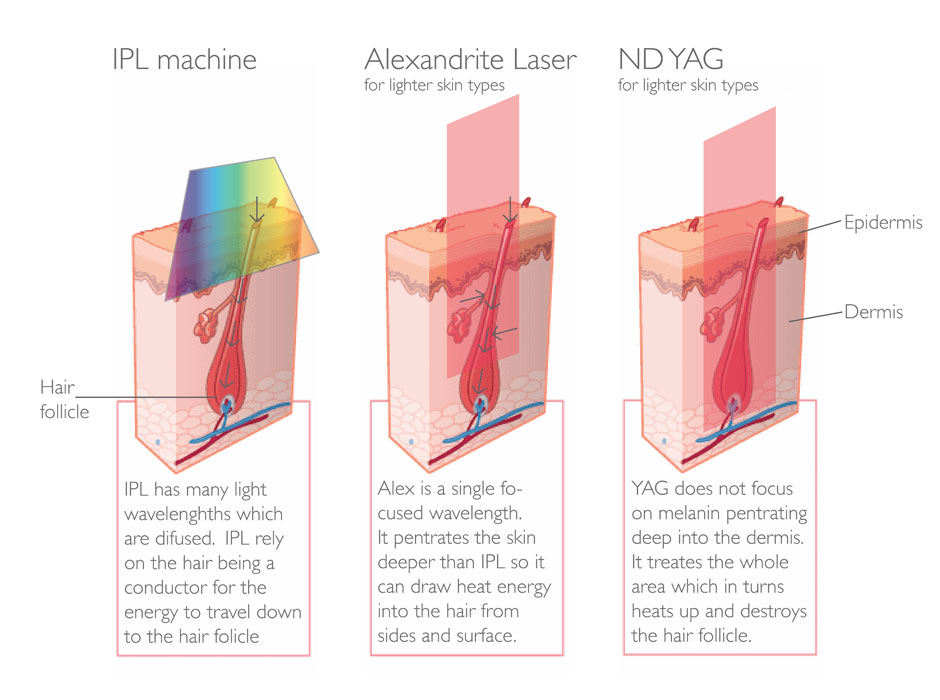 187 Lasers Skin Treatments The Facts And Experts Advice
