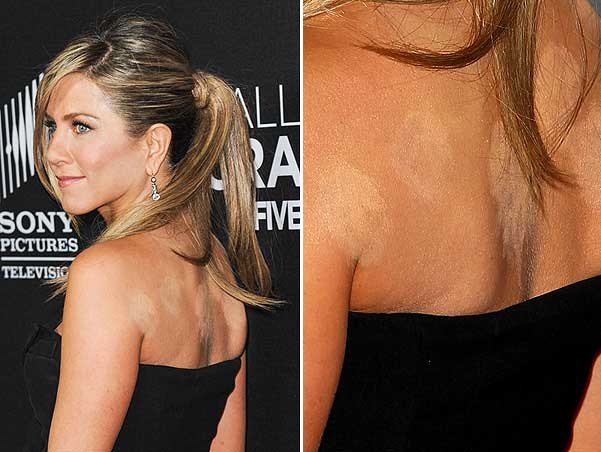 Jeniffer Aniston cupping marks