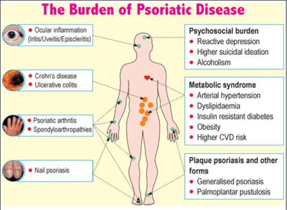 Psoriasis and Comorbidities