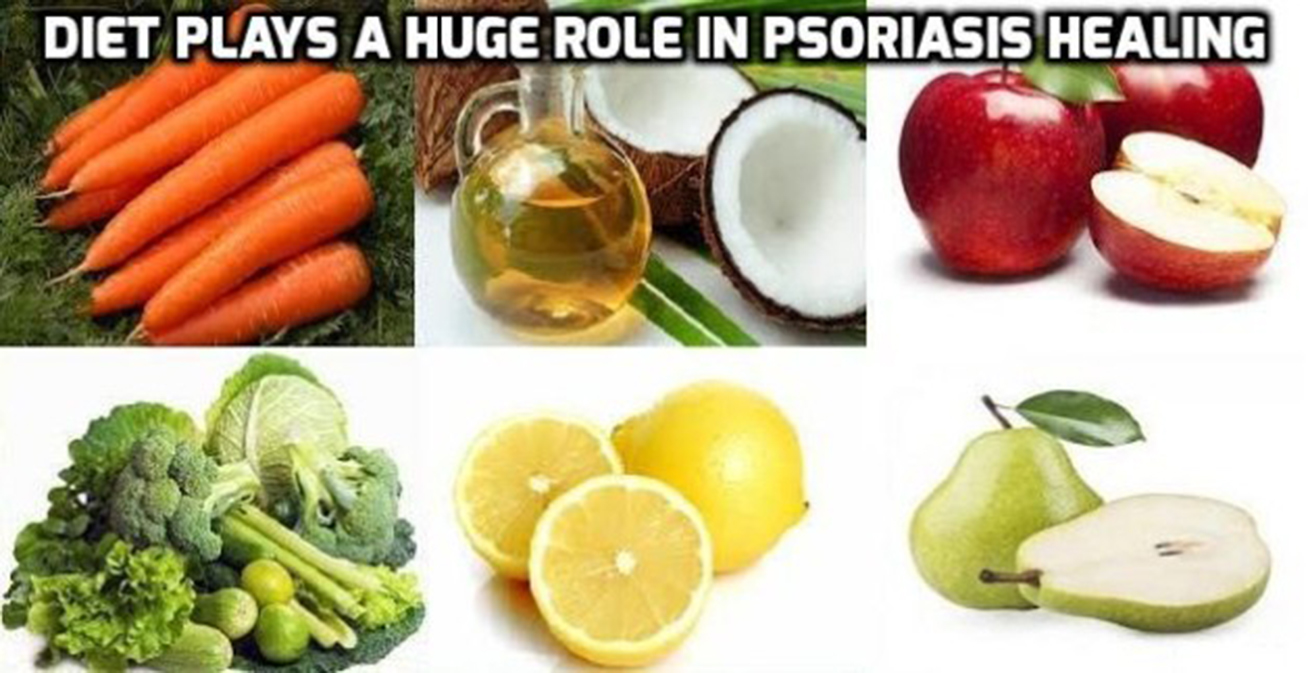 diet and psoriasis