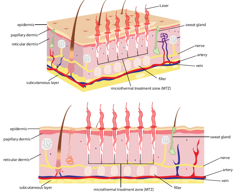 SKin_diagram how laser works on skin