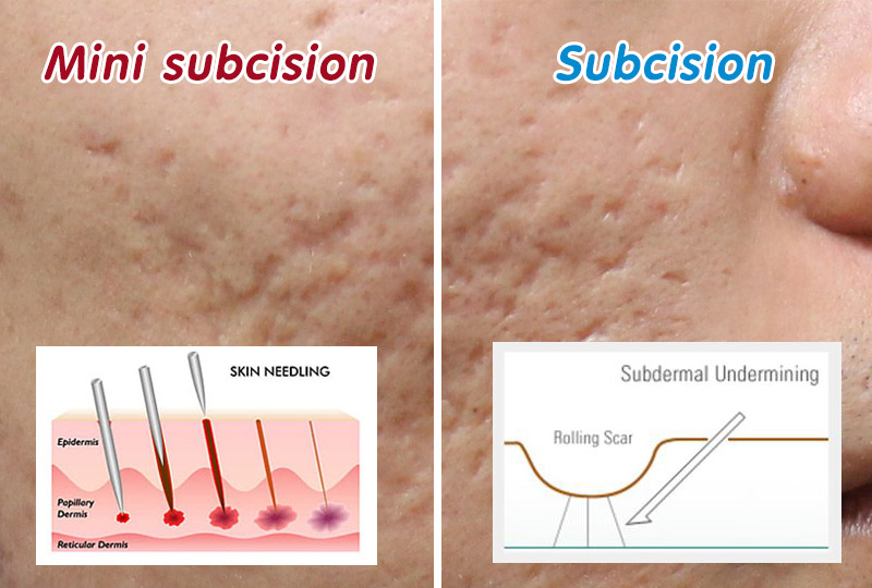 Acne Scars Treatment Subcision Doctor Answers ... - RealSelf