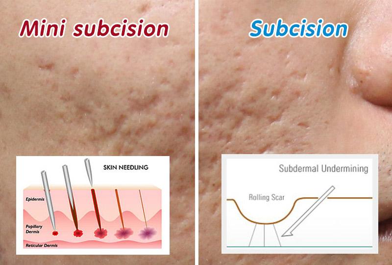 Subcision-vs-Mini-subcision