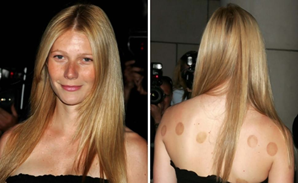 Wenith Paltrow cupping marks