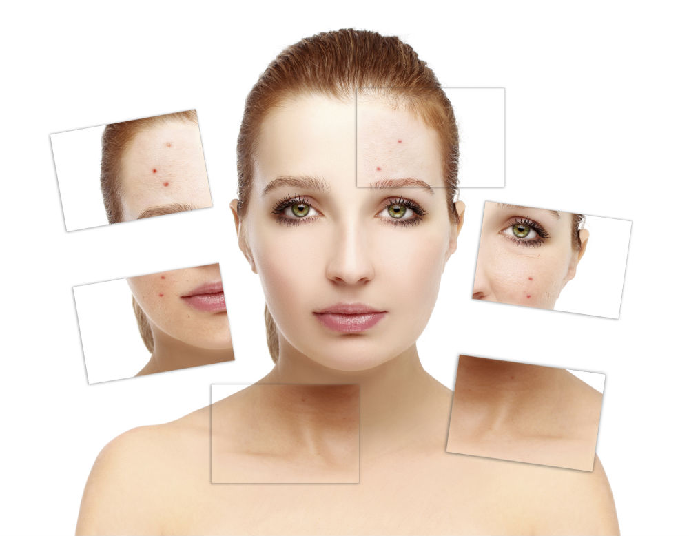 acne skin squares