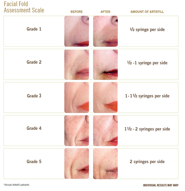 amount per location of derma fillers