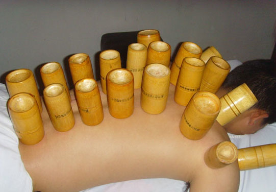 cupping Bamboo cups