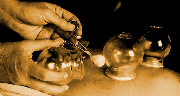 cupping- sepia 620x330