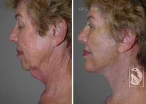 facelift-before-after-035