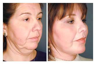 facelift-before-and-after-002