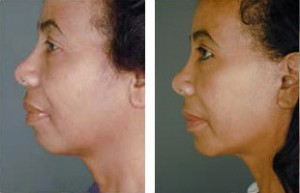 facelift-before-and-after-014