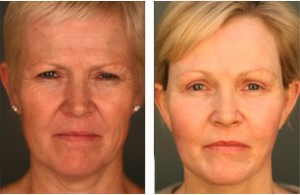 facelift-before-and-after-025
