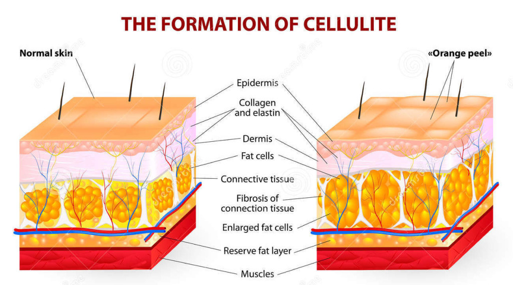 formation-cellulite-vector-diagram-occurs-most-females-rarely-males-34935527