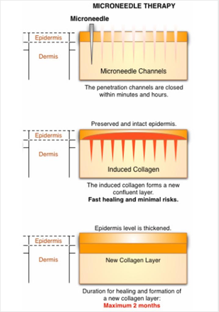 microneedle-layers