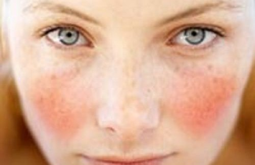 natural-cure-for-rosacea