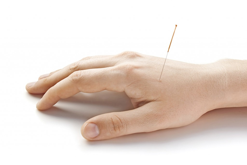 Acupunctured hand (horizontal)