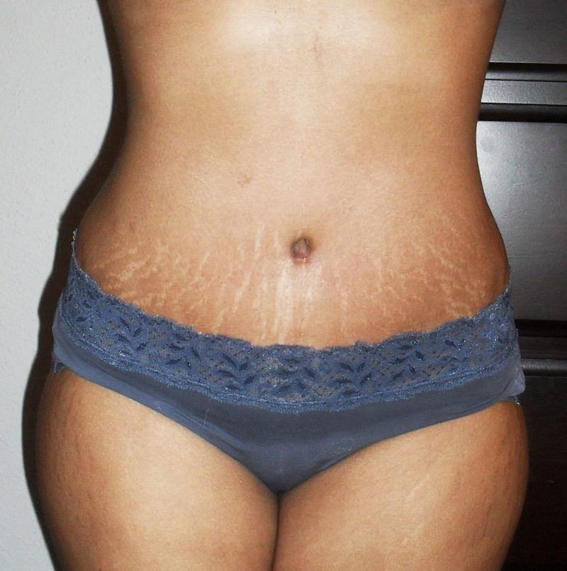Stretch Marks Are Visible Lines On The Skin Surface With An Off Color Hue Mainly Found In Abdominal Wall But Can Also Occur Over
