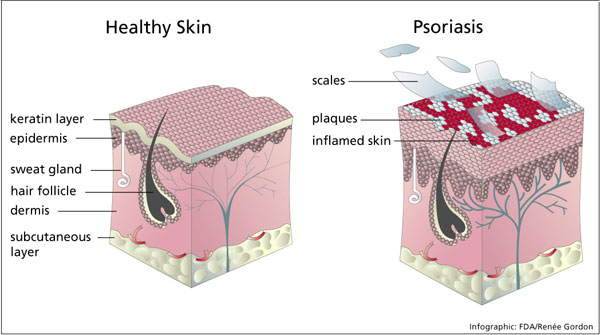 psoriasis and healthy skin