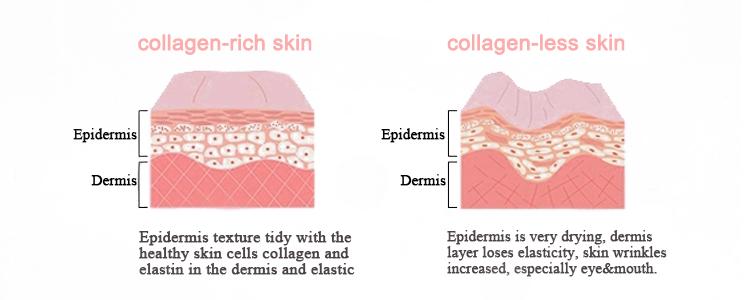 skin grafhic