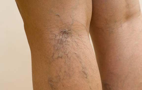 spider-veins1
