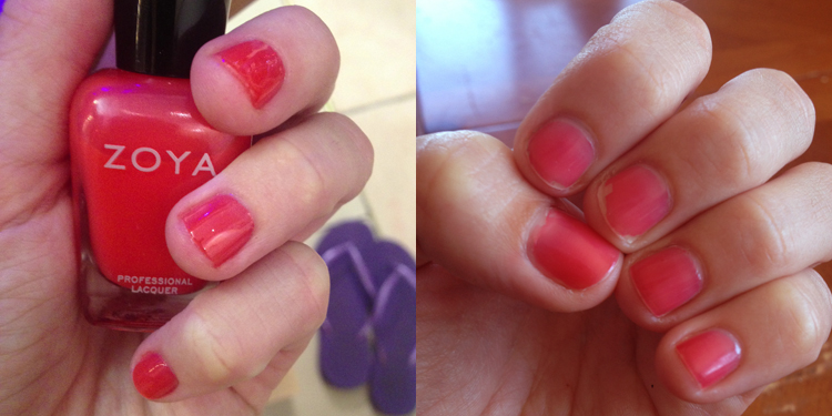 zoya_beforeafter